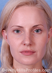 Young woman's face - before rhinoplasty treatment, front view, patient 1