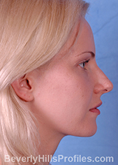 Young woman's face - before rhinoplasty treatment, right side view, patient 1