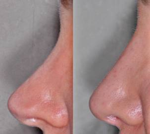Male face, nose - before and after Rhinoplasty Mistakes treatment