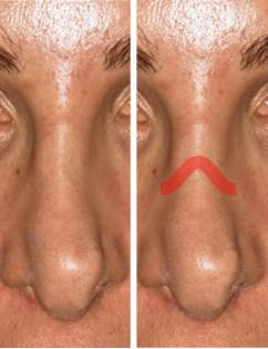 Patient nose, before and after Rhinoplasty Mistakes treatment, front view