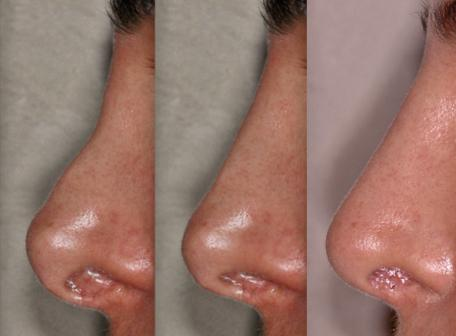 Patient face, nose - before and after Rhinoplasty Mistakes treatment