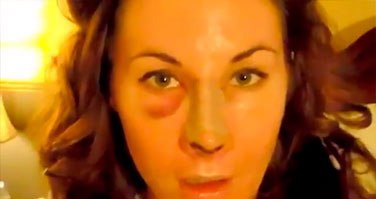 Watch Video: Rhinoplasty Beverly Hills Patient Diary - Sarah - Part 4 Of 11