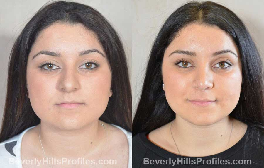 pics Female patient before and after Nose Surgery front view