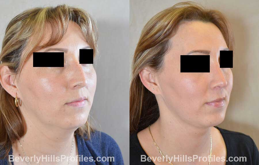 photos Female patient before and after Nose Surgery - front view