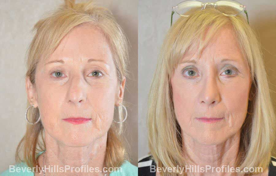 photos Female patient before and after Nose Surgery Procedures - front view