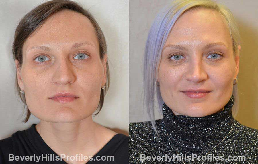 Female patient before and after Nose Surgery Procedures - front view