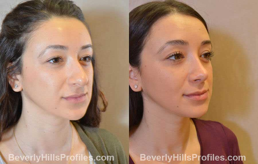 patient before and after Nose Surgery Procedures - front view