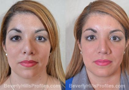 Revision Rhinoplasty Before and After Photo Gallery - front view, female patient 24