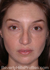 Female face - after Nasal Anatomy treatment, front view