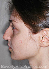 Female face - before Nasal Anatomy treatment, left side view