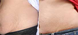 Female tummy, before and after Stretch marks treatment, patient 2, oblique view