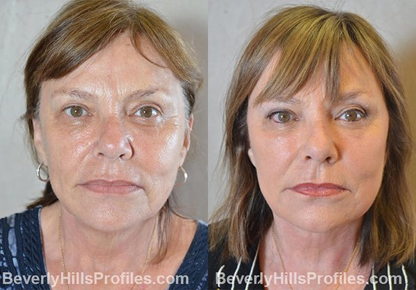 Facelift Before and After Photo Gallery - female, front view, patient 11