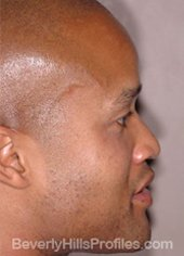 Ethnic Rhinoplasty Before Treatment Photo - male, right side view, patient 2