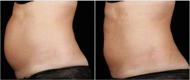Female tummy, before and after sculpsure treatment, left side view