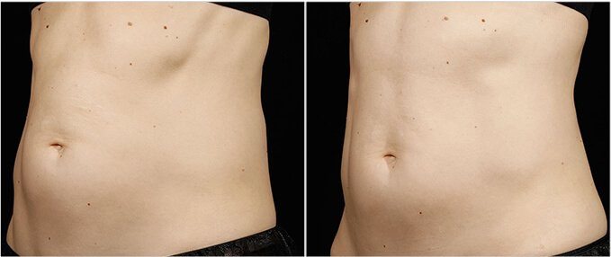 SculpSure Before and After Photos: female, left side oblique view, patient 5