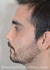 Male fece, after Rhinoplasty Mistakes treatment, left side view - patient 1