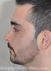 Male fece, before Rhinoplasty Mistakes treatment, left side view - patient 1
