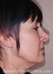 Female fece, before Rhinoplasty Mistakes treatment, right side view - patient 2