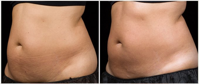 SculpSure Before and After Photos: female, left side oblique view, patient 10
