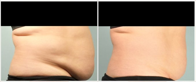 SculpSure Before and After Photos: female, right side view, patient 11