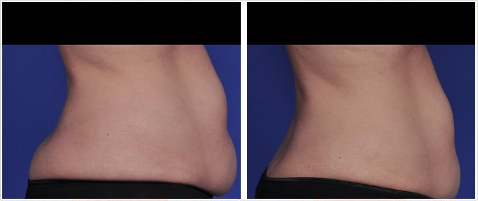 SculpSure Before and After Photos: female, right side view, patient 12