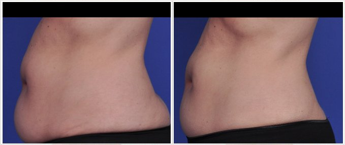 SculpSure Before and After Photos: female, left side view, patient 13