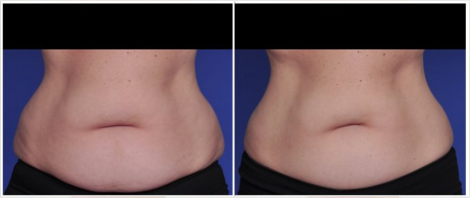 SculpSure Before and After Photos: female, front view, patient 14