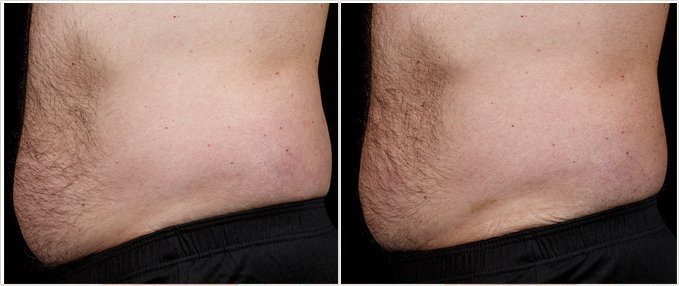 SculpSure Before and After Photos: male, left side view, patient 16