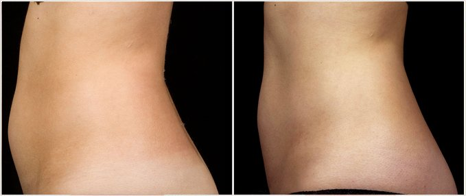 SculpSure Before and After Photos: female, left side view, patient 8