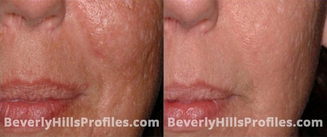 Acne Surgical Scars Before and After Photos