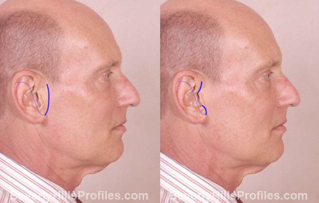 Male face, before and after Facelift treatment, right side view (Facelift Incisions Comparison)