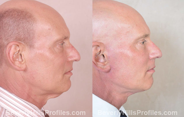 Male face, before and after Facelift treatment, right side view