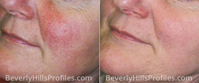 Rosacea Before and After Treatment Photos: female face, oblique view, patient 1