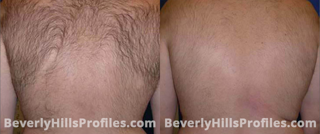 Unwanted Hair Before and After Photos: back view, male patient 2
