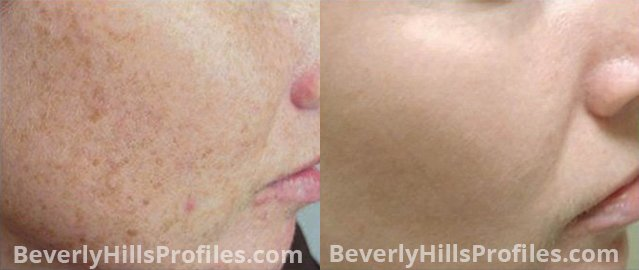 Facial Vessels and Pigments Before and After Photo Gallery - female, right side view, patient 3