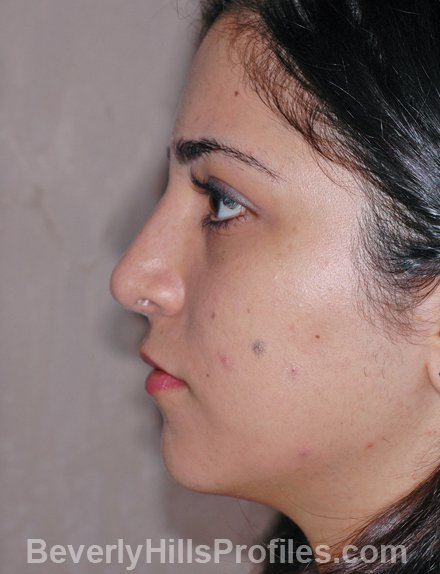 Rhinoplasty After Photo - female, side view