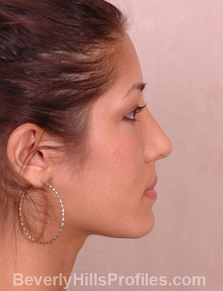 Ethnic Rhinoplasty After Treatment Photo - female, right side view, patient 3