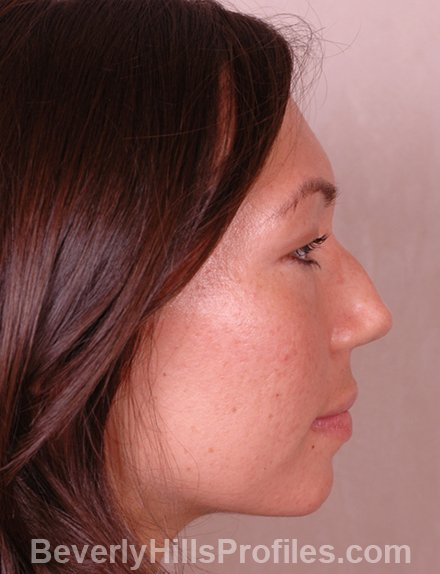Ethnic Rhinoplasty Before Treatment Photo - female, right side view, patient 4