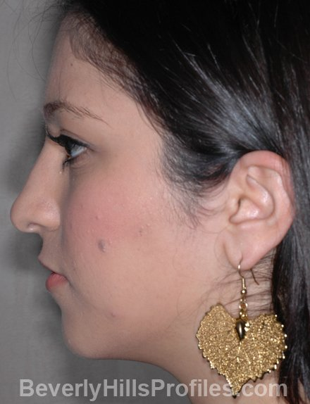 Nose Job Before - female, side view