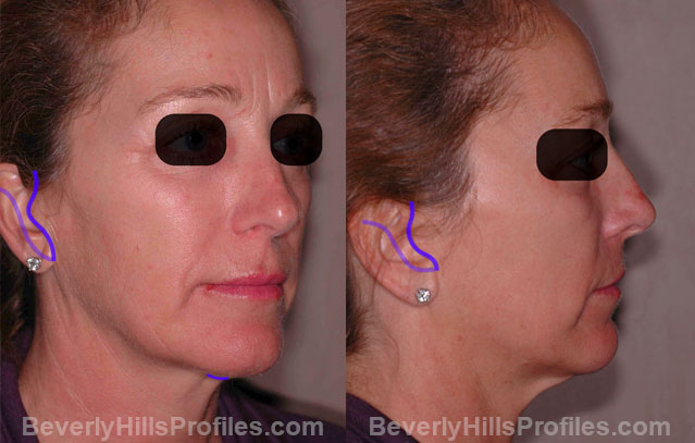 The Hybrid Lift Treatment - female, oblique view, patient 1,  step 1