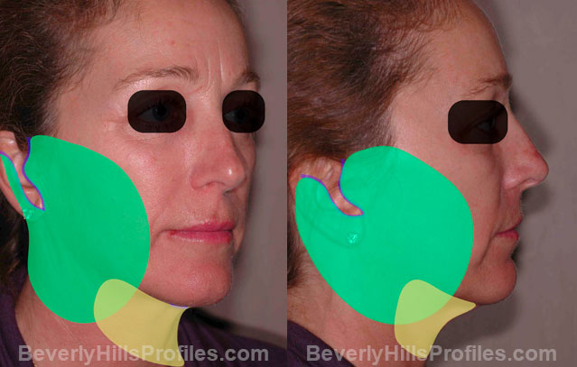 The Hybrid Lift Treatment - female, oblique view, patient 1,  step 2
