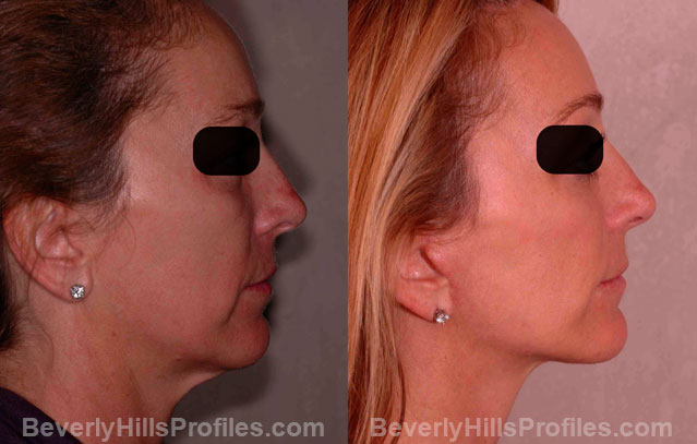 The Hybrid Lift After Treatment - female, right side view, patient 1,  step 8