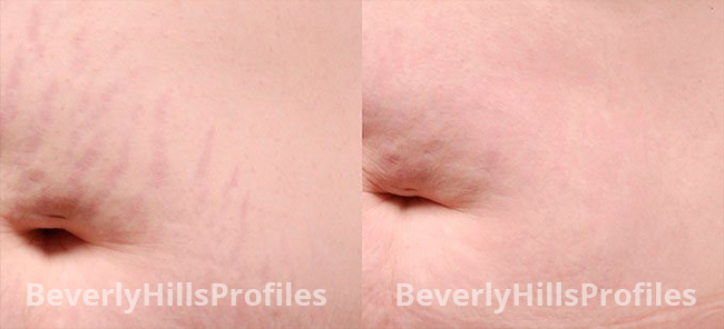 Stretch Marks Before and After Photos - female patient 3