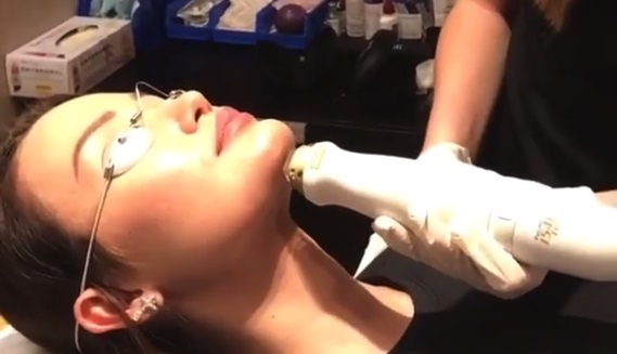 Watch Video: Chin Augmentation Surgical Scar Removal Surgery in Action