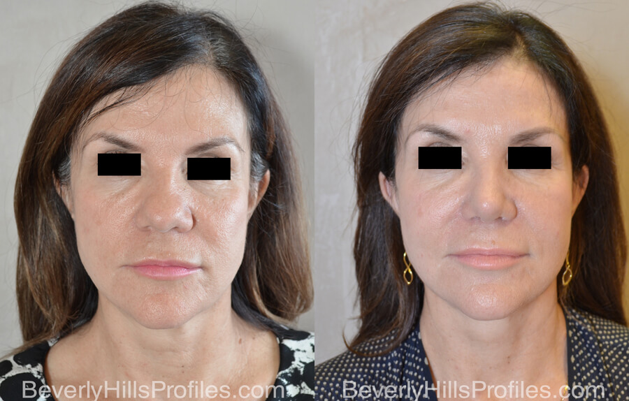 Facial Fat Transfer Before and After Photo Gallery - female, front view,patient 14