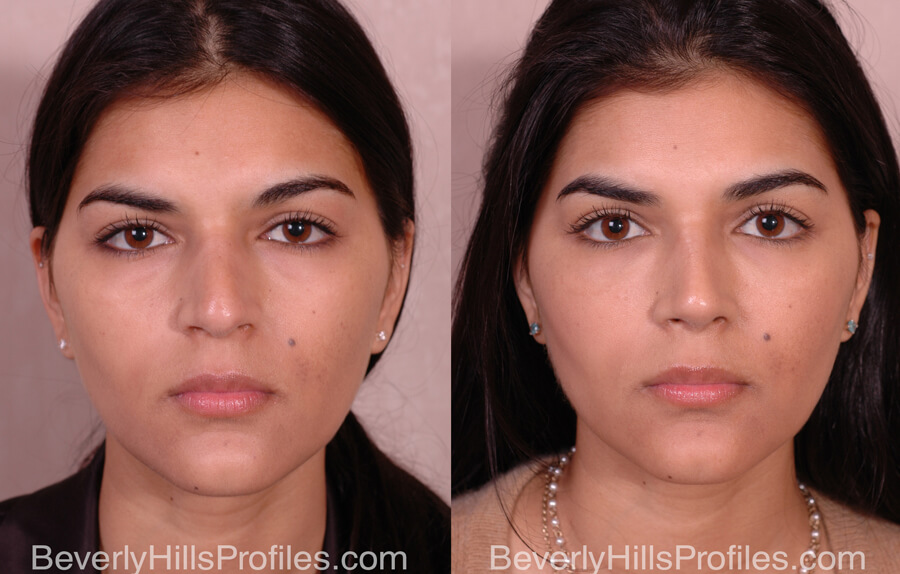 Facial Fat Transfer Before and After Photo Gallery - female, front view,patient 16