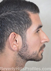 Otoplasty Before Photo - male, side view