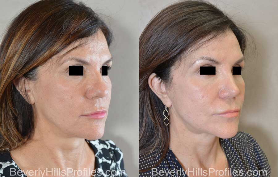 Rhinoplasty Before After - female, front view