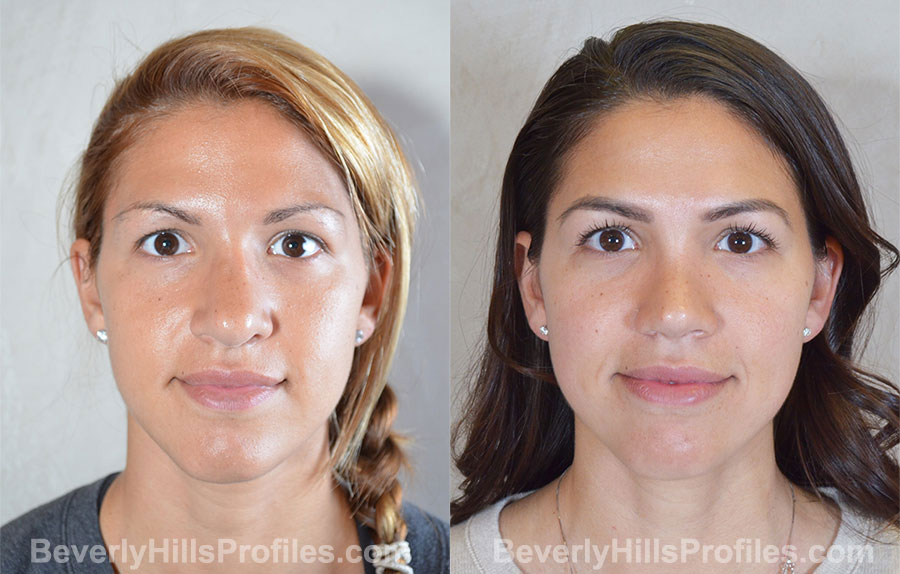 Revision Rhinoplasty Before and After Photo Gallery - front view, female patient 36