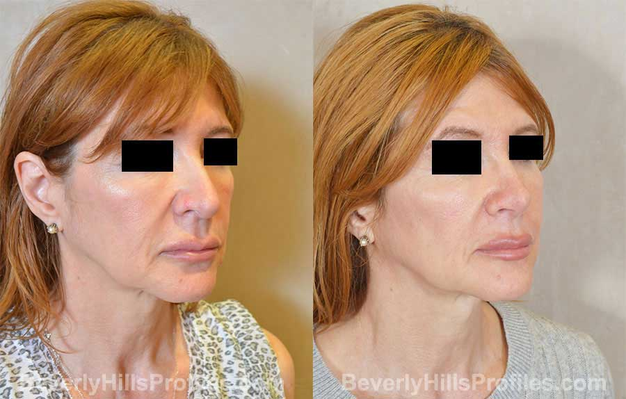 Rhinoplasty Before and After Photo Gallery - female, front view
